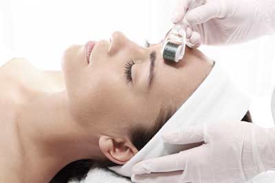 Micro-needling Paris 01