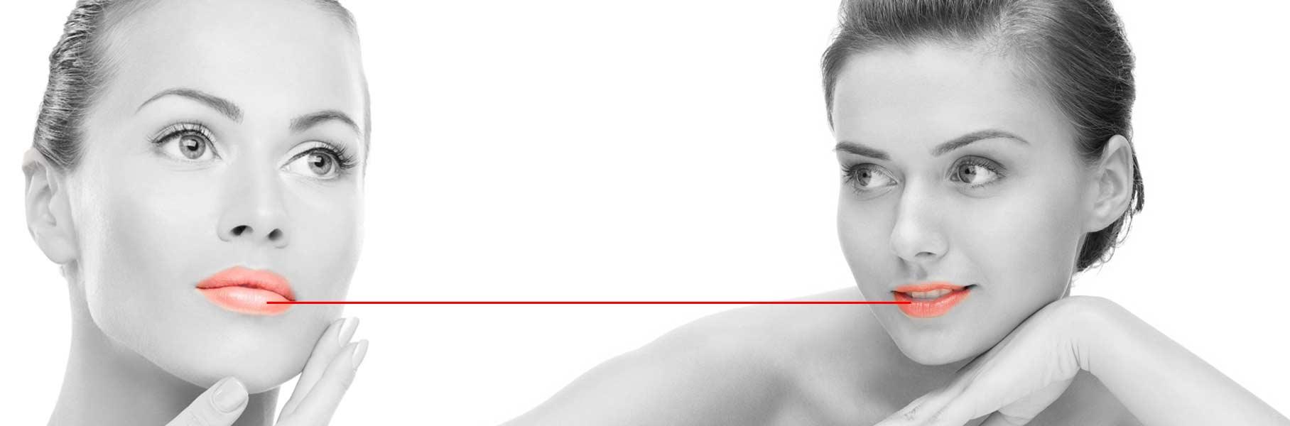 Redessiner les lèvres acide hyaluronique
